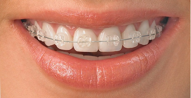 orthodontics in turkey