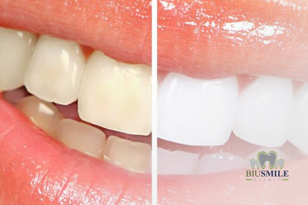 Cause of Teeth Pigmentation